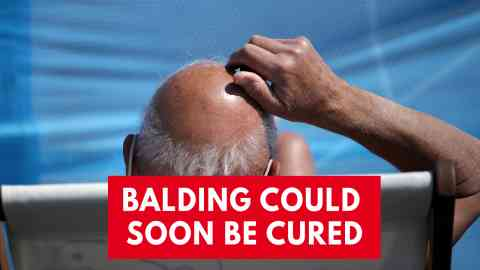 Hair Loss Treatment Coming? South Korean Scientists Develop Drug To